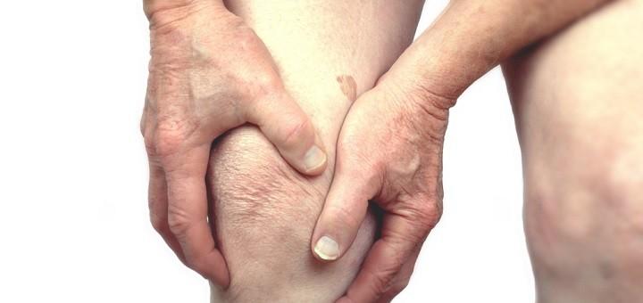 Arthritis-720x340